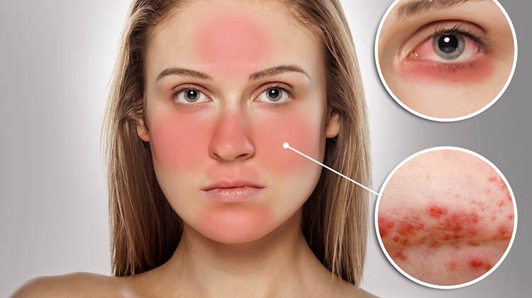 Kem dưỡng da có chứa thành phần corticoid gây kích ứng da