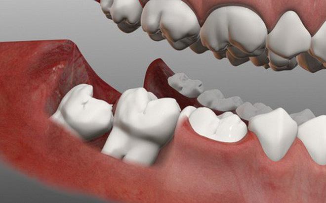 Răng khôn có 4 cái, mọc ở 2 đầu hàm trên và dưới