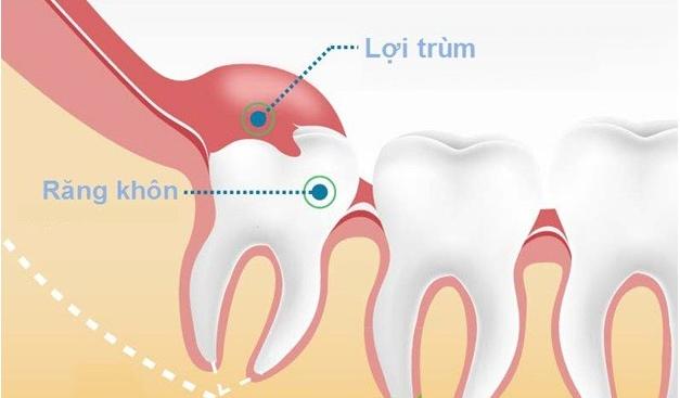 Nên kiêng một vài thói quen ăn uống khi mọc răng khôn