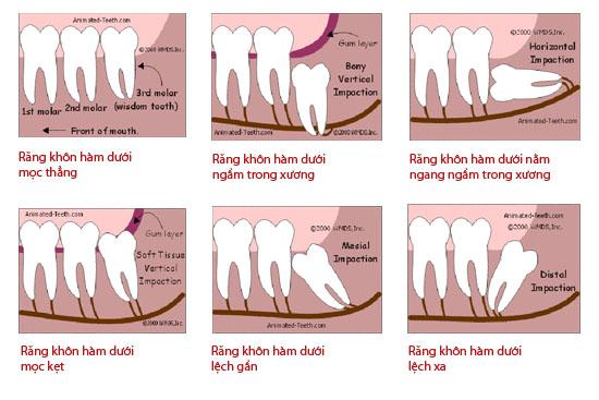Đau răng khôn uống thuốc gì để giảm đau nhanh?