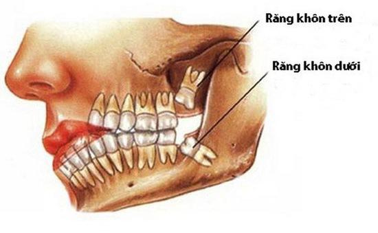 Mỗi người thường sẽ có 4 chiếc răng khôn mọc khi trưởng thành