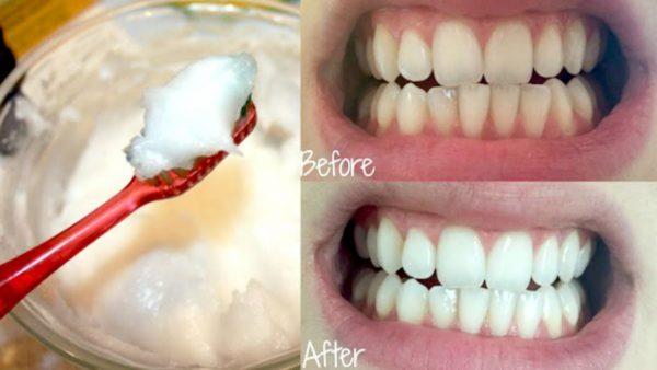Cách làm trắng răng tại nhà hiệu quả nhất bằng nước gạo