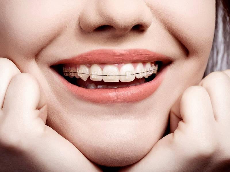 niềng răng 1 hàm bao nhiêu tiền