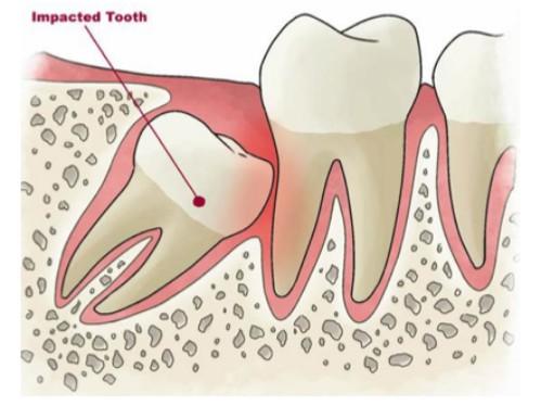 răng khôn là răng thứ mấy