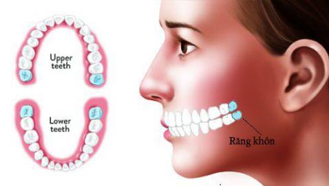 răng khôn là răng nào
