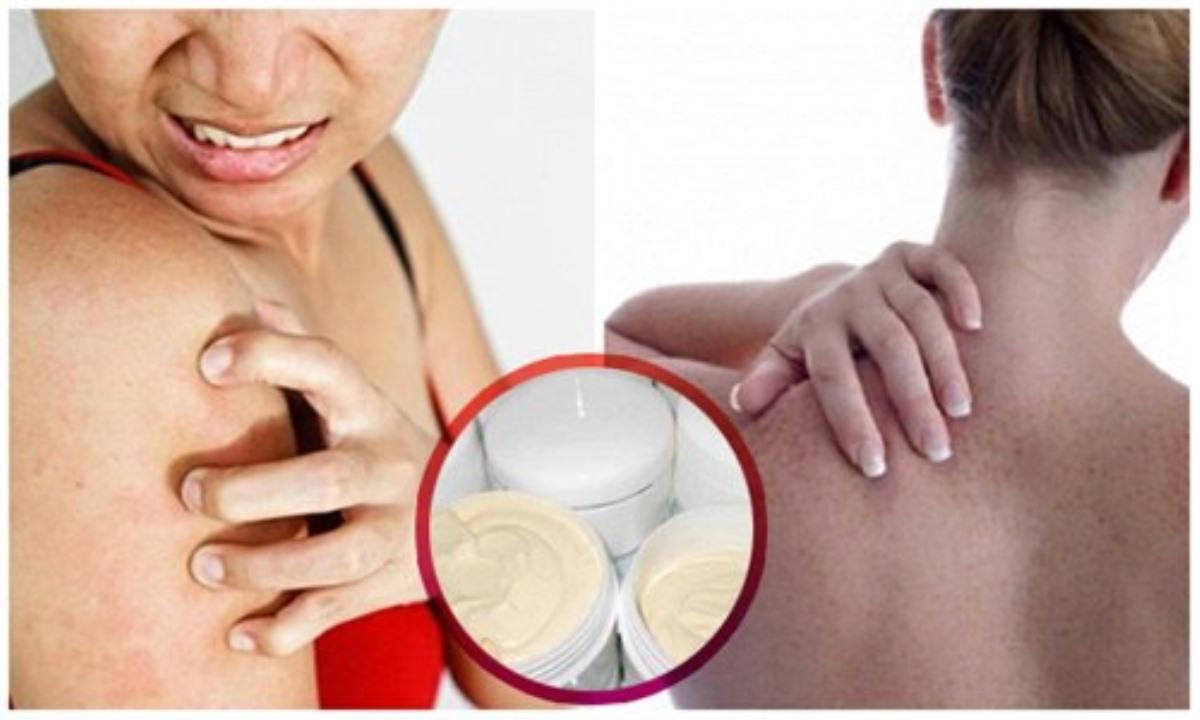 Tác hại của kem trộn trắng da toàn thân