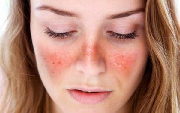 bệnh Lupus ban đỏ là gì